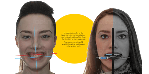 In order to transfer to the laboratory the horizontal plane and vertical midline of the face, the OneBite® system was used. This system consists of 2 straight bars that lock to each other and an arch.