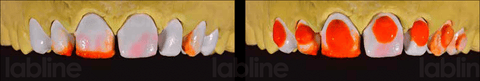 Correction of the opacity in areas where dentine is missing with opaque dentin ceramic. Alveolar model with the plaster dies. Correction of the inclination of the mastication plane with dentin.