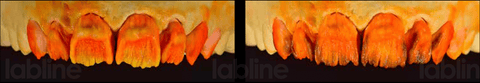 Fluorescent dentin. Opaque dentin.