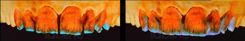 Incisal opalescence. Blueish transparent interproximal.