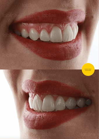 Lateral views of the smile. Labline OneBite