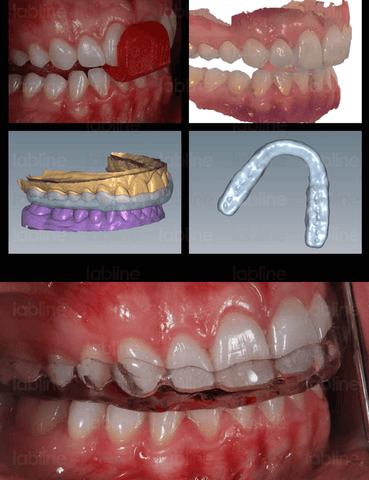 It is important for the maintenance of the therapeutic result to provide the patient with a night guard in order to protect the veneers.  In this case, an intraoral digital impression was taken and a splint was fabricated using CAD/CAM technology without any analog procedures. Orthotic, labline, onebite, Nondas Case Study