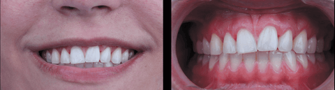 4 WEEKS AFTER - HAMGELOS one bite system for recording the horizontal plane of the face relative to the teeth 4 WEEKS - ENDOSMOST