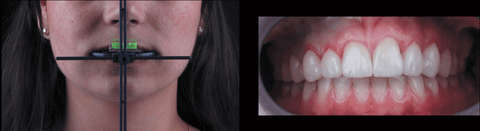 OneBite system for recording the horizontal plane of the face relative to the teeth 4 WEEKS - ENDOSMOST WELDING DAY