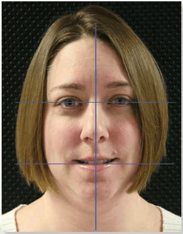 Figure 1: The facial midline, interpupillary line and incisal line should be in symmetrical harmony (note minor nasal asymmetry).