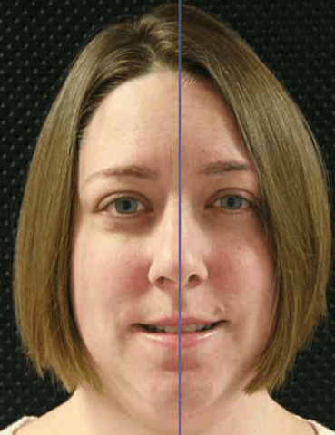 Figure 3: The facial and dental midline should coincide for optimum esthetics.