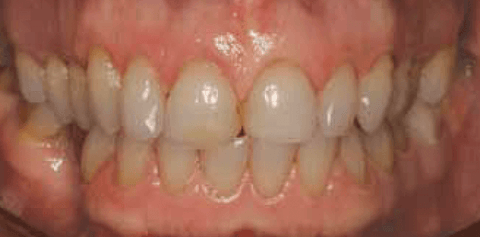 Figure 4: This patient's midlines do not coincide, thus the mandibular midline cannot be used as a reference point for the final restorations.