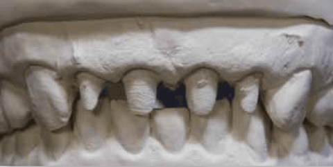 Figure 8: Using the incisal edges of the cuspids when the anteriors are prepared could lead to an erroneous horizontal cant on the restorations because the cast is not mounted to the interpupillary line.