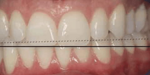 Figure 9: The two lines show the disparity between the incisal horizontal plane and the position of the cusp tips of the canines.