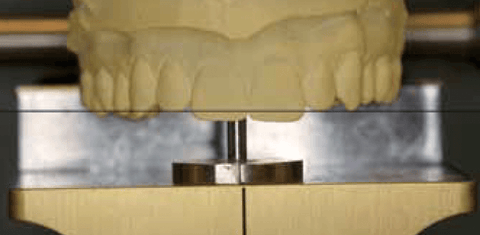 Figure 10: This photograph shows the obvious error that would result if the casts were mounted in a horizontal incisal relationship based on cuspid position.