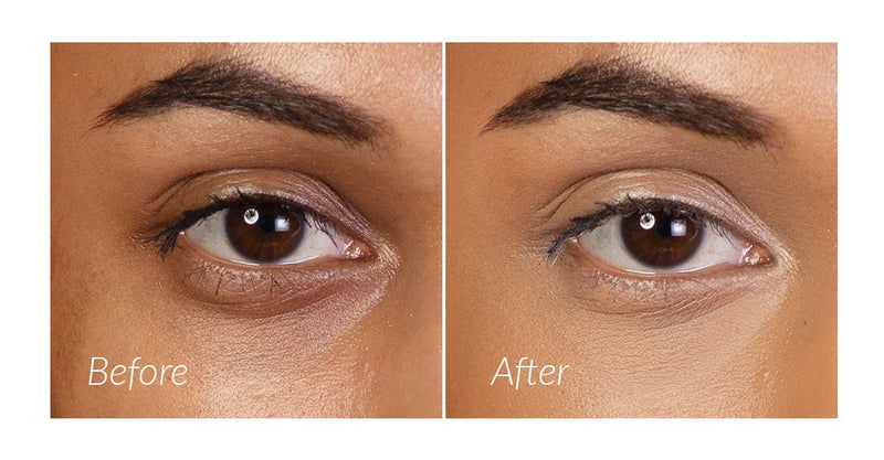 Vasanti Liquid VO2 Dark Circle Eraser - Closeup eye shot before and after comparison with label