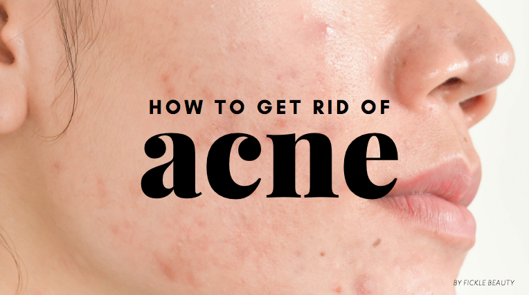 The Ultimate Guide to Getting Rid of Acne