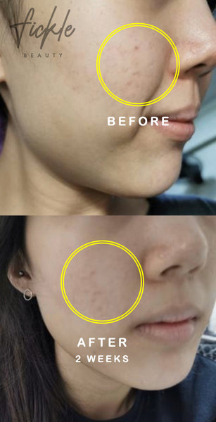 Fade Post-Inflammatory Hyperpigmentation (dark spots caused by break outs)