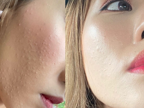 Getting Rid Of Tiny Bumps Malessezia Foliculitis Fungal Acne Fickle Beauty