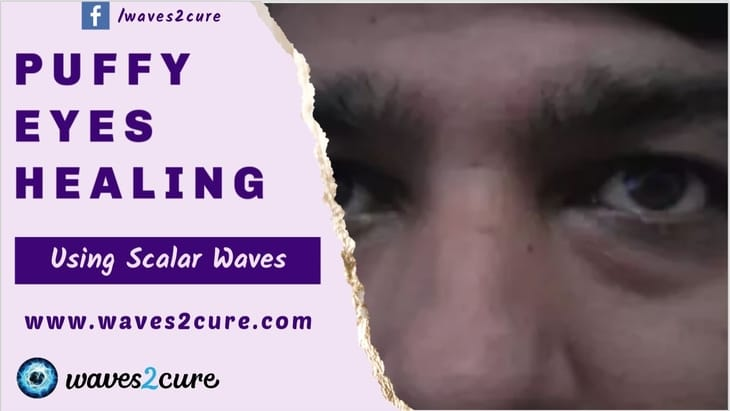 Puffy Eyes Healing Using Scalar Waves