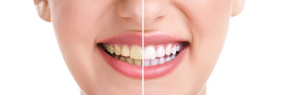 Tooth Health Tips: Good Habits, Supplements & Nutrition