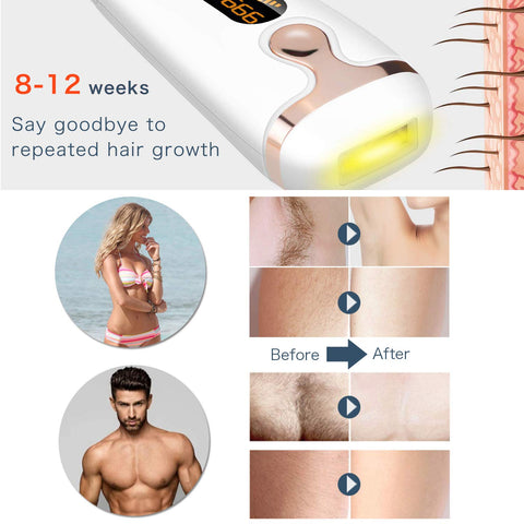 removing hair with laser