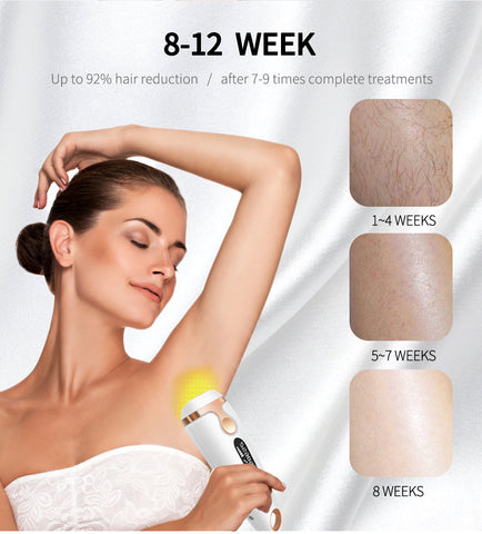 hair removal lasers