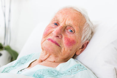 Rosacea Is More Severe In Those Over 50