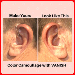 Invisible Hearing Aid Dye Kit - Vanish - Hide Your Hearing Aid