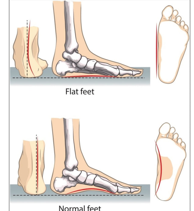 What is Flat feet? Causes, Symptoms, Treatments