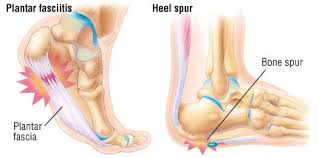 What is Heel Spur & Plantar Fasciitis: Causes, Symptoms, Treatments