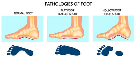 No arch or a high arch in your foot