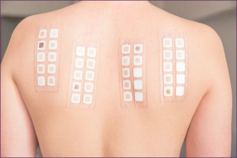 Dermatologist skin allergy patch test