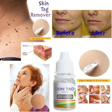 10ML Body Warts Treatment Cream Skin Tag Remover Foot Corn Removal Plantar Genital Warts Ointment Foot Care Cream Dropshopping
