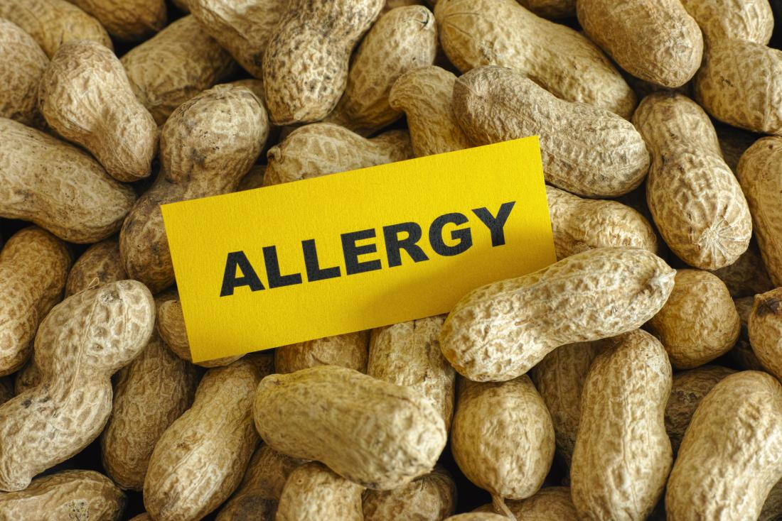 How to Travel with a Peanut Allergy - Seat Sitters Guide