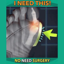 Load image into Gallery viewer, WALK-HERO™ Original Orthopedic Sandal