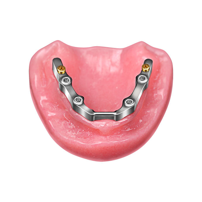 Titanium Implant Hater Locator Bar with STL File