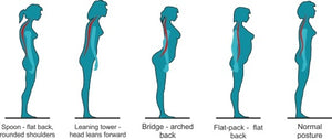 How Has Poor Posture Silently Been Affecting Your Life?
