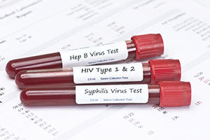 Comprehensive STD Test (HIV 1&2, Herpes 1&2, Hepatitis B&C, Syphilis, Gonorrhea/Chlamydia)