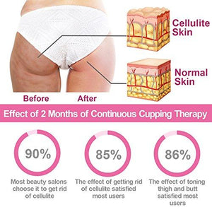 ANTI CELLULITE CUPS