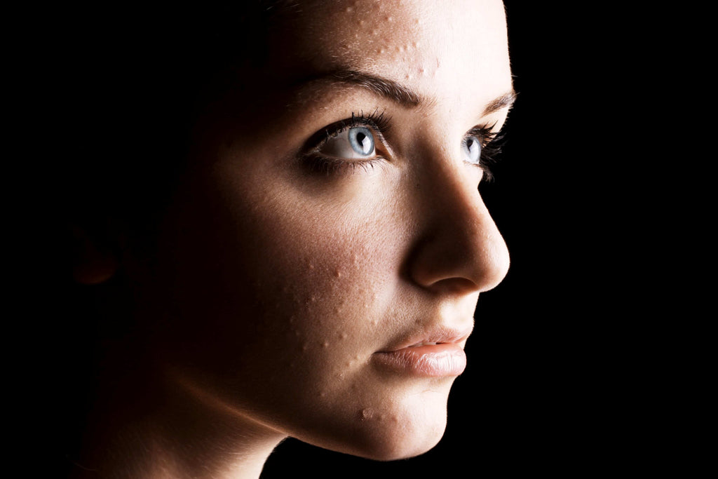 woman with acne skin problems