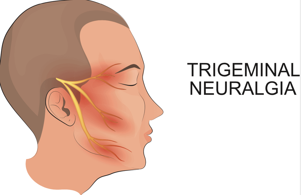 man with trigeminal neuralgia in his face