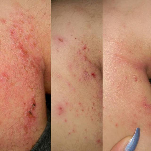 marine collagen heals eczema