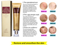 LANBENA Acne Scar Stretch Marks Remover Cream Skin Repair Face Whitening Cream Acne Spots Pregnancy  Postpartum Body Skin Cream