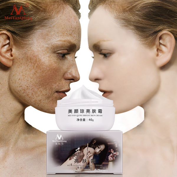 Strong Effects Powerful Whitening Freckle Cream 40g Remove Melasma Acne Spots Pigment Melanin Dark Spots Face Care Cream
