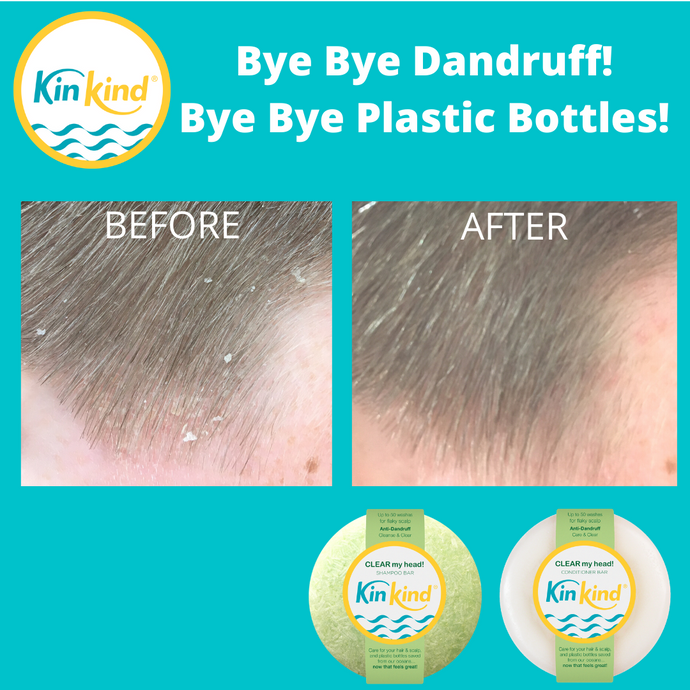 Bye bye DANDRUFF and PLASTIC BOTTLES! New KinKind CLEAR my head! bars