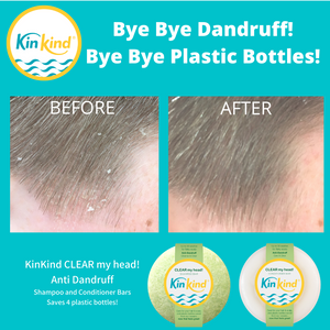 best anti dandruff shampoo and conditioner bars from KinKind plastic free