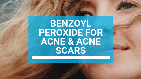 Benzoyl Peroxide For Acne & Acne Scars