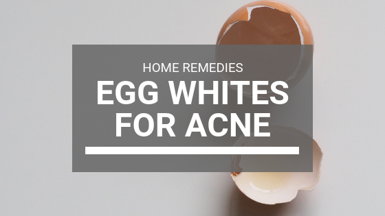 Egg Whites for Acne: Egg Whites Mask Home Remedies (2018)