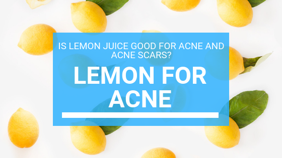 Lemon for Acne: Is Lemon Juice Good For Acne And Acne Scars