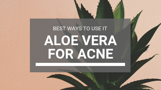 Aloe Vera For Acne: Best Ways To Use Aloe Vera To Get Rid Of Pimples
