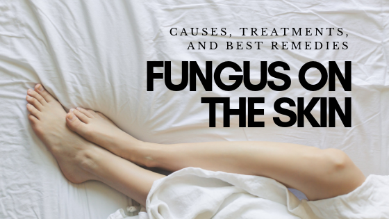 Treating Fungus on the Skin: Causes, Treatments, And Best Remedies