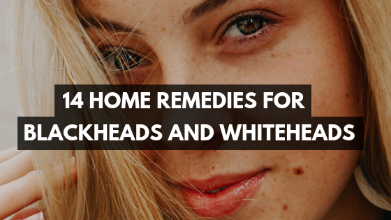 14 Home Remedies for Blackheads and Whiteheads