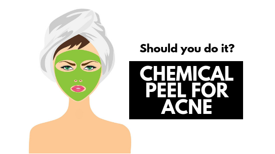 Chemical Peel for Acne