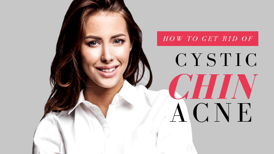 How To Get Rid Of Cystic Chin Acne